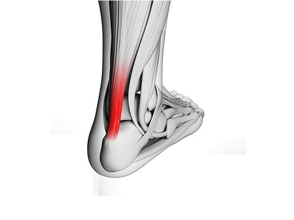 Image of Achilles strain